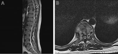 Figure 1: (A) Magnetic resonance imaging (MRI) shows a pathological fracture (arrow) and a lesion in the eighth thoracic vertebral body with loss of the normal marrow fat. (B) MRI shows a heterogeneous lesion involving the body and both pedicles of the eighth thoracic vertebra with narrowed spinal cord canal (arrow).