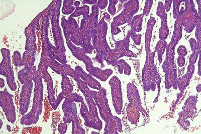 Figure 1: Exophytic tumour composed of villous and papillary architecture (H&E, 10x  magnification)