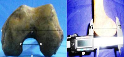 Figure 1: Photographs showing the measurement of the parameters (AB-intercondylar notch depth; CD-intercondylar notch width; EF-condylar width; GH-condylar depth)