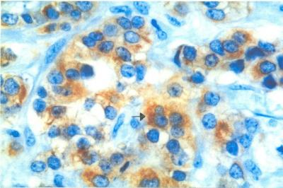 Figure 1. Histological section of IDC showed immunopositivity for Bcl-2 in the cytoplasm (magnification x400)