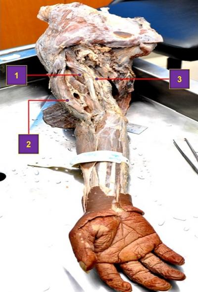 Figure 1: Anterior view of a dissected right upper limb showing 3rd head of biceps brachii. 1 = 3rd head of biceps brachii; 2 = Main biceps brachii; 3 = Median nerve.