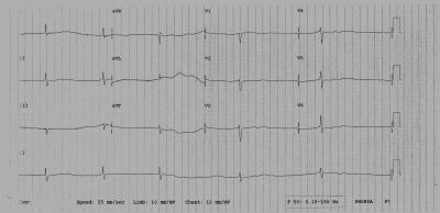 Figure 1: Initial electrocardiogram (ECG) during arrival to the emergency cardiac unit showing no P wave and slow ventricular rate of 33 beats per minute.