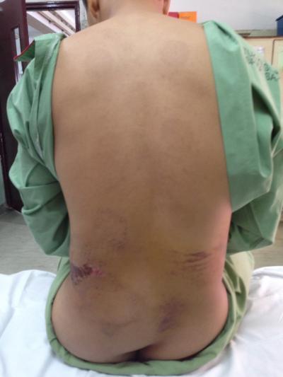 Figure 1: Swelling over left lower lumbar region