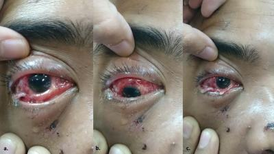 Figure 1: Pictures of conjunctival necrotic tissue and pus collection a) Restriction of elevation b) Restriction of depression c) Restriction of adduction.