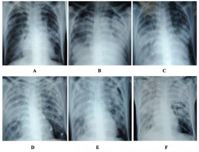 Figure 1: Serial chest radiographs throughout hospital admission. Chest radiograph taken at Day 2 (A) showed bilateral perihilar haziness. Serial chest radiographs were taken at Day 5 (B), Day 8( C), Day 16 (D), Day 21 (E) and Day 22 (F) showed worsening opacities over both lung fields.