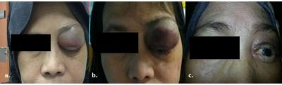 Figure 1: a) Demonstrating the left upper eyelid swelling at presentation; b) Post excision biopsy; c) Shrinkage of the swelling post radiotherapy and while undergoing chemotherapy