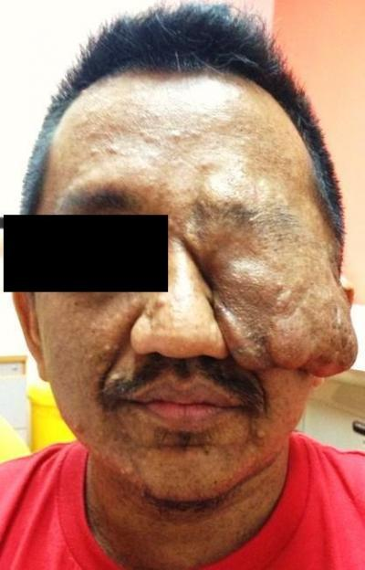 Figure 1: Left facial tumour protruding from the orbital cavity displacing the eyeball downwards (eyeball not seen in picture)