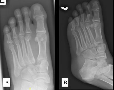 Figure 1: (A) Anteroposterior view and (B) oblique view of left foot plain radiograph showing Lisfranc injury of the left foot