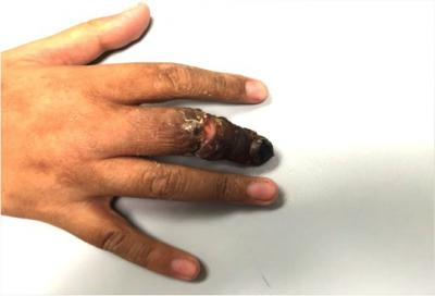 Figure 1: Post-revascularisation at 7 days: The skin of the middle finger remained black from the proximal interphalangeal joint to the tip