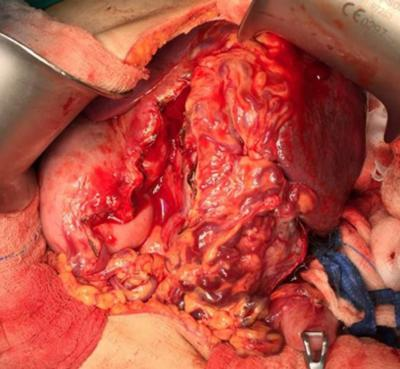 Figure 1: A hard nodular mass at the hilum of spleen with dilated tortuous vessel