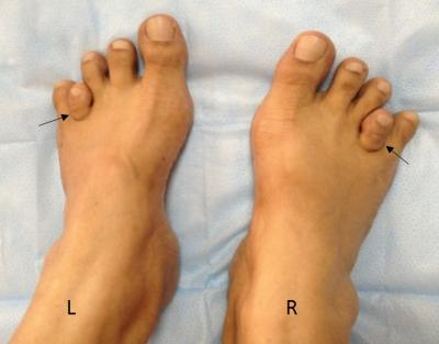 Figure 1: Clinical photograph of bilateral short fourth metatarsals. L: left; R: right; arrows showing affected fourth metatarsals.