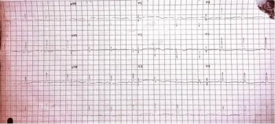 Figure 1a : ECG on arrival demonstrating repolarization changes