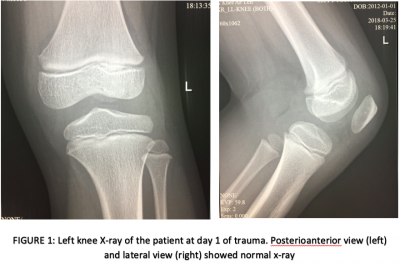 Figure 1: Left knee X-ray of the patient at day 1 of trauma. Posterioanterior view (left) and lateral view (right) showed normal x-ray