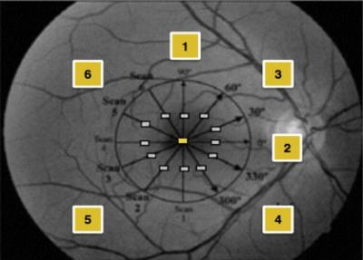 Figure 1: Division of macular region into 6 quadrants with 3 points of measurements'; one point on the subfovea and two points 500 μm on either side of the fovea, as shown above 1, vertical line; 2, horizontal line, 3, superior nasal quadrant; 4, inferior nasal quadrant; 5, inferior temporal; 6, superior temporal 3-6 (2 lines at each quadrants)