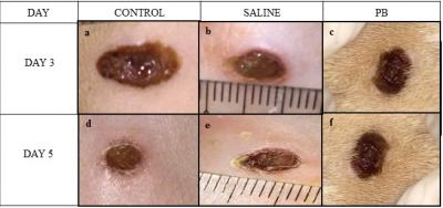 Figure 1: Effects of PB on wound healing of the skin. The figure shows the wounded area on days 3 (a-c) and 5 (d-f) for all three groups (control, saline; PB) with the formation of granulation tissues. Four 6 mm wounds were created on the dorsal part of each rat under anesthesia using punch biopsy needle. Treated groups were washed with saline and wiped dry before evaluation.