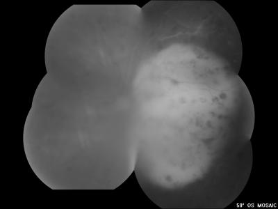 Figure 1: OS fundus showed vitritis with a huge dome-shaped choroidal mass covering the whole macula