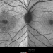Figure 3: IR of right and left eyes. IR of right eye showed multiple hyper-reflective areas at the macula region. Left eye was normal.