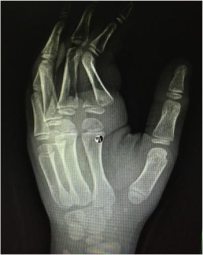 Figure 1: Radiograph of the left hand showing a displaced and angulated fracture of the base of the proximal phalanx of the left index finger (Salter Harris Type 2) (yellow arrow)