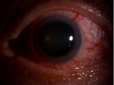 Figure 1: Anterior segment photo of left eye during first presentation showing cork-screw vessels