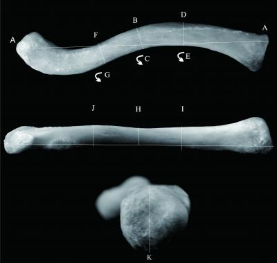 Measurements of clavicle. A: Measurements on maximum length (MXL); B: Anterior-posterior diameter at mid-diaphysis (F); C: Mid-diaphysis circumference (MDC); D:Anterior-posterior diameter at medial 1/3 of clavicle (APM); E: Medial 1/3 clavicular circumference (MC); F: Anterior-posterior diameter at lateral 1/3 of clavicle (APL); G: Lateral 1/3 clavicular circumference (LC); H: Superior-inferior diameter at mid-diaphysis (SIMD); I: Superior-inferior diameter at medial 1/3 of clavicle (SIM); J: Su